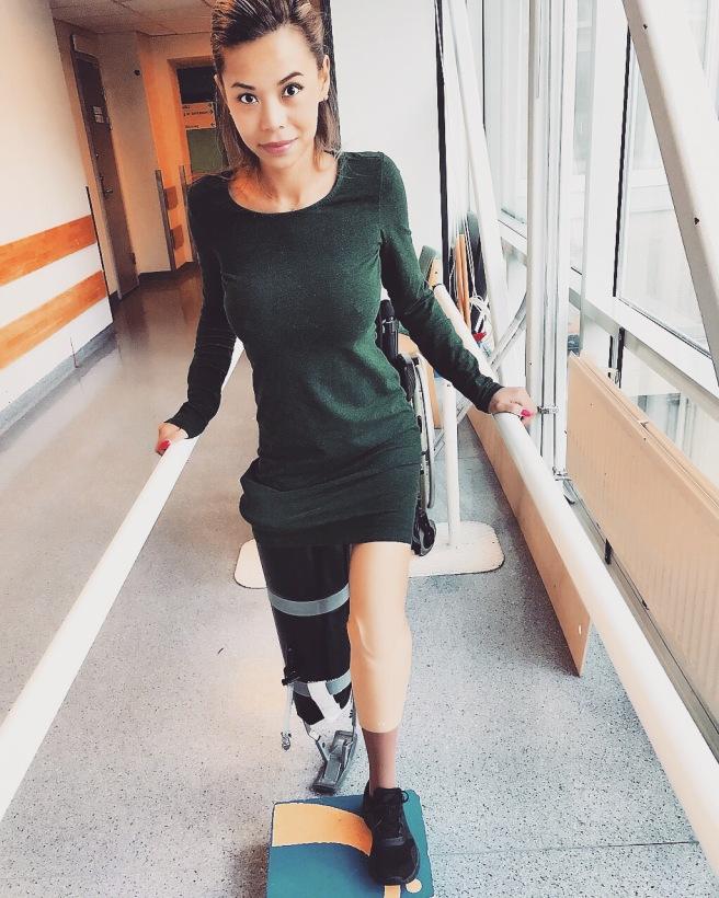 Celine smiler. Hun trener med en ny protese.