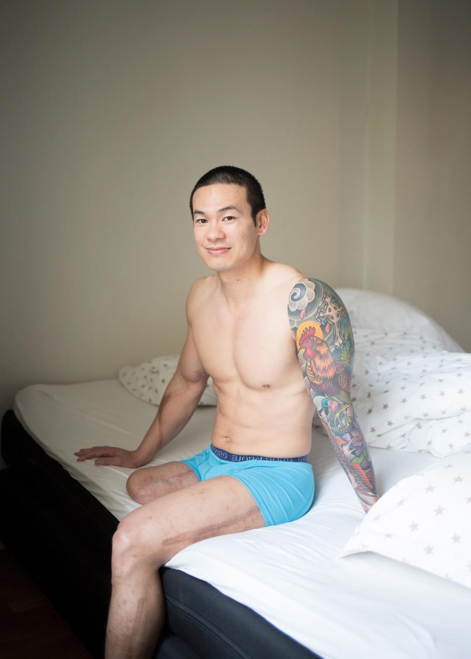 Den unge mannen sitter på sengekanten iført turkis boksershorts. Hele venstrearmen er tatovert med fargerike, detaljerte motiver fra skuldra og ned, blant annet med en brun hane. På den andre armen strekker det seg et arr fra bicepsen og ned på innsiden av underarmen. På den amputerte foten går et arr fra lysken og ned til amputasjonspunktet ved låret. På den venstre foten går det et langt arr på yttersiden av både låret og leggen. Mannen ser i kamera og smiler vennlig.