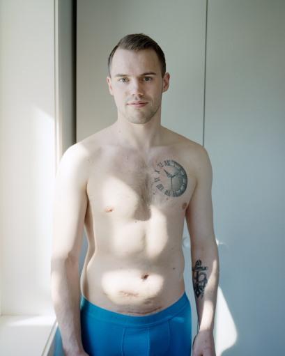 En hvit, ung mann i 20-årene står ved et vindu. Håret hans er kort, brunt og ryddig gredd bakover. Mannen har en slank overkropp og står i en blå boksershorts. Han har en tatovering av en klokke med romertall over sitt venstre bryst, og et anker omslynget av et tau på sin venstre underarm. Han har to arr som går på tvers av magen under navlen. Det lengste arret går langs deler av linningen i boksershortsen. Sollyset skinner gjennom vinduet og treffer mannens overkropp. Mannen ser i kamera og har et lett smil.
